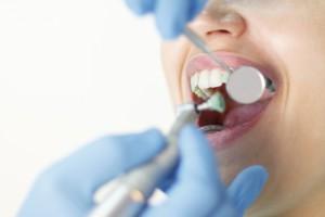 Skidanje kamenca i poliranje zuba