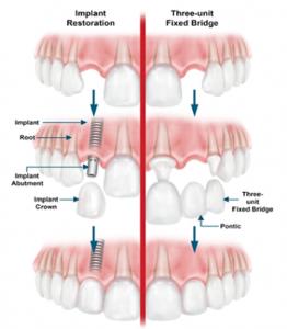 ugradnja-zubnih-implantata
