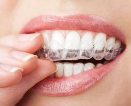 Kućno beljenje zuba pomoću splintova