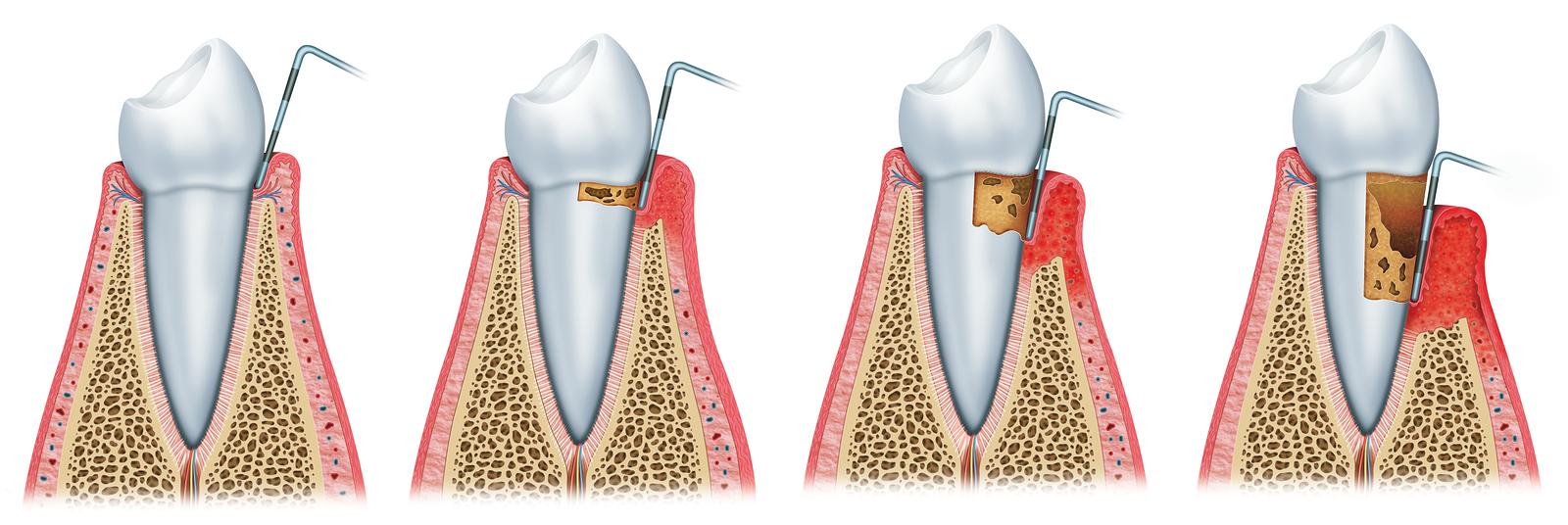Faze parodontopatije