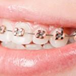 Proteze za ispravljanje zuba