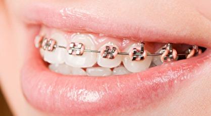 zubne proteze