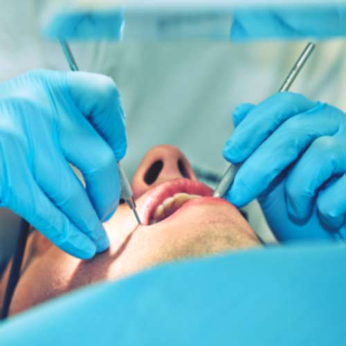 parodontologija popraka