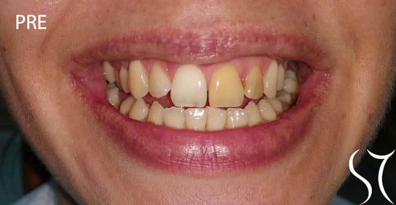 Beljenje avitalnih zuba pre