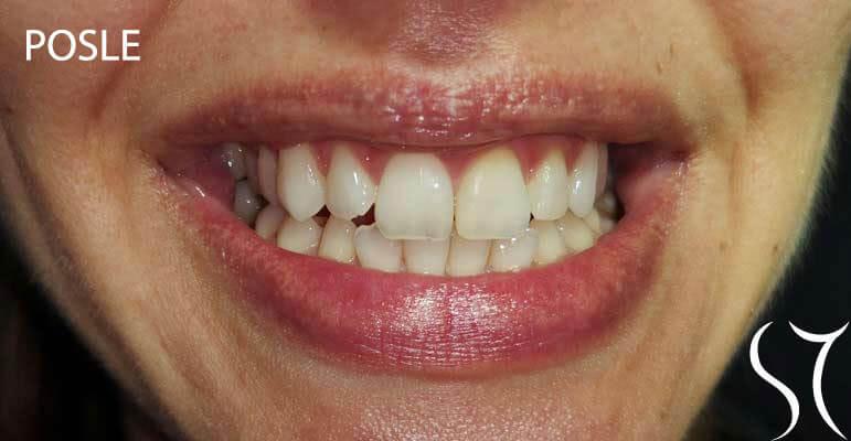 Beljenje avitalnih zuba posle