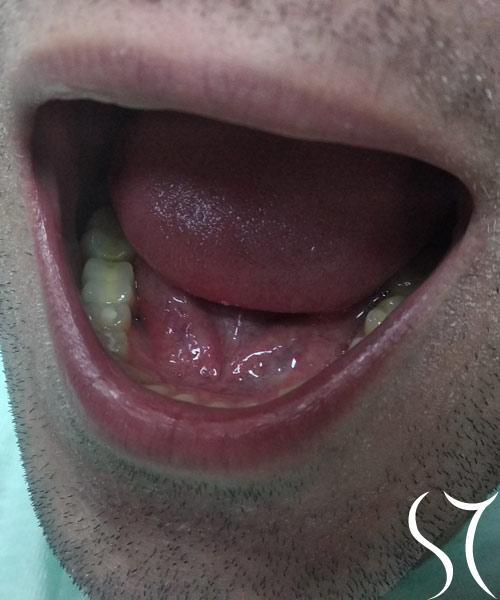 Implant bocne regije posle