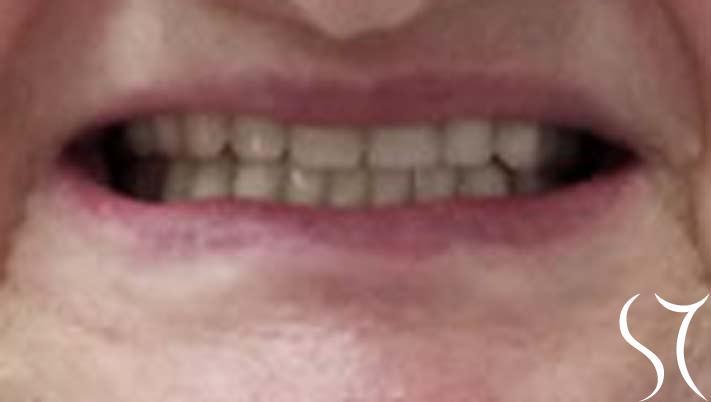 velinka-zubi
