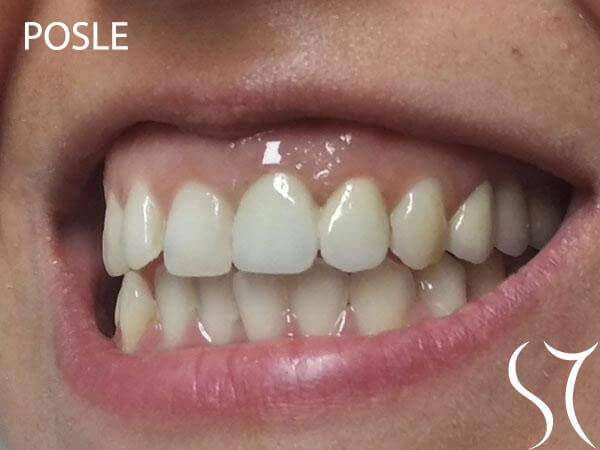 Keramika prednjih zuba posle