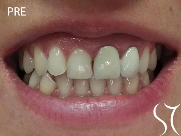 Bezmetalna keramika prednjih zuba