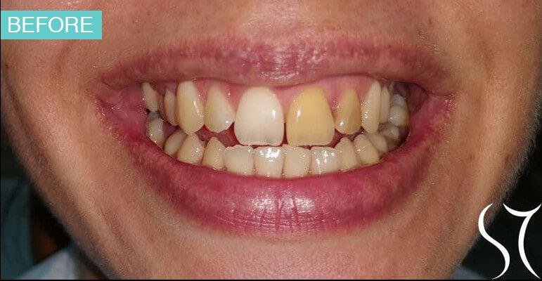 beljenje-avitalnih-zuba-pre-en